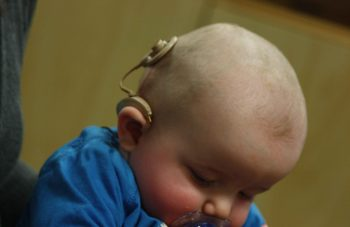 infant_with_cochlear_implant